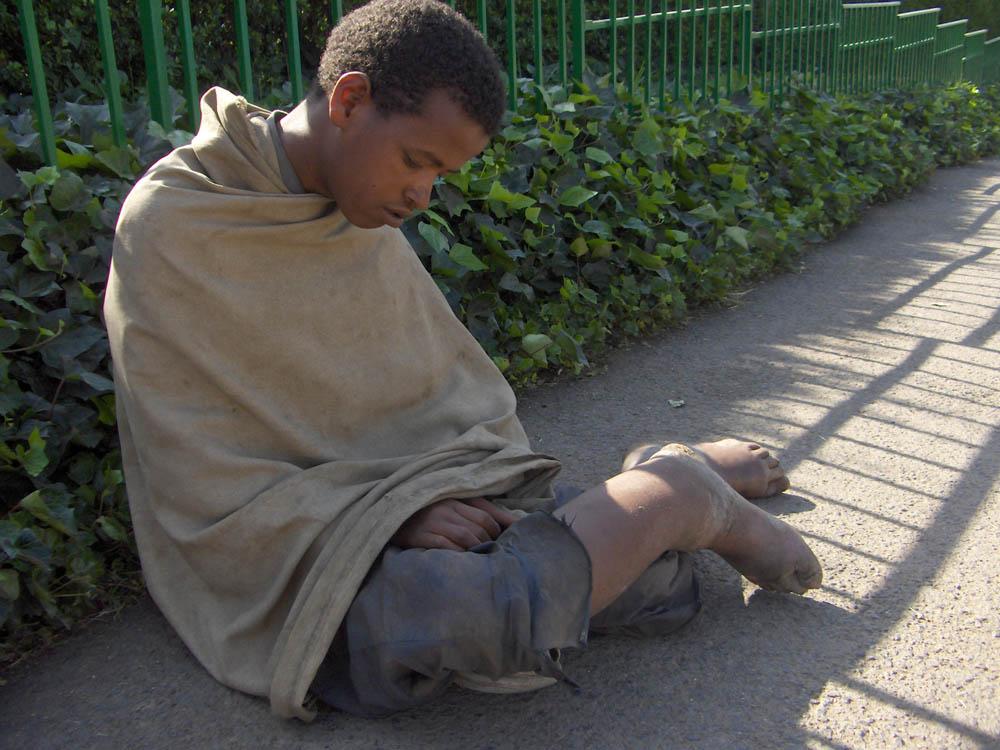 Etiopia 81 1 - EtiopiaEtiopia 81 1 - Etiopia - -